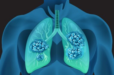 Lung Cancer Care