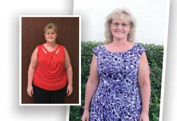 Cheri Roberson Before and After