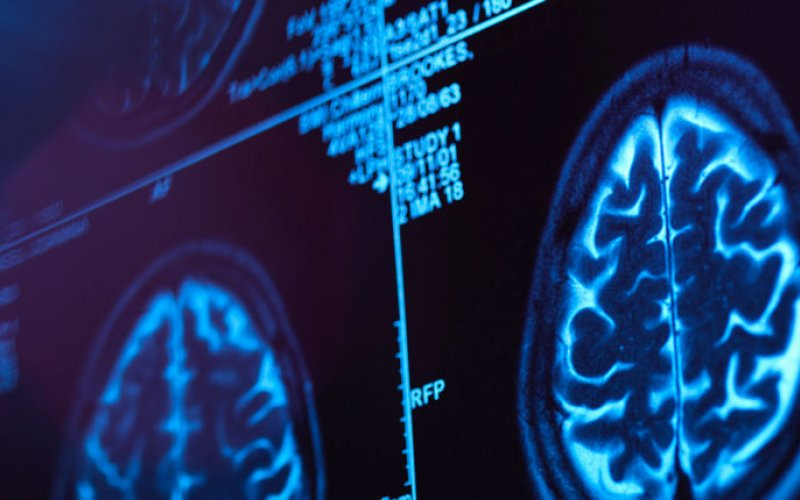 Tomografía cerebral